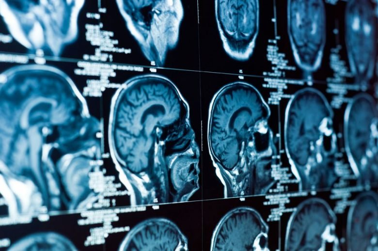 There are 3 types of strokes. Here's what you need to know about them