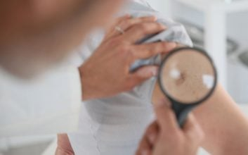 Skin cancer rates in all 50 states